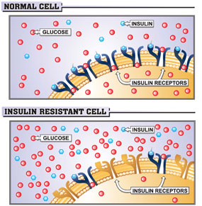 Normal vs. Insulin Resistant Cell