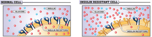 Normal vs. Insulin Resistant Cell